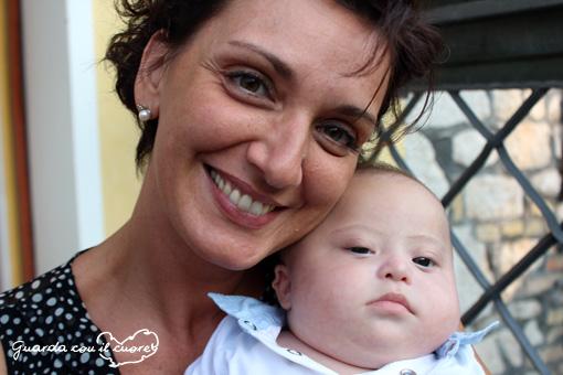 mamma e bambino con sindrome di down